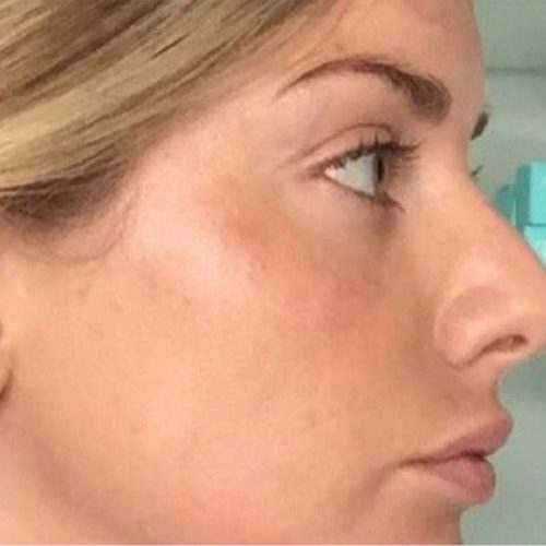 after microneedling female right profile