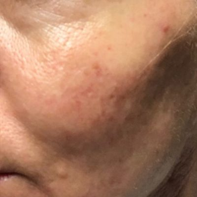 after PRP microneedling closeup