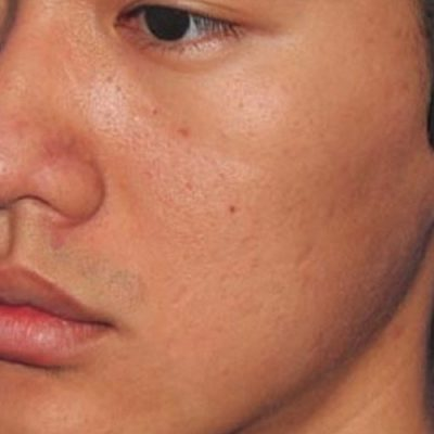 after microneedling closeup