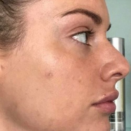 before microneedling female patient right profile