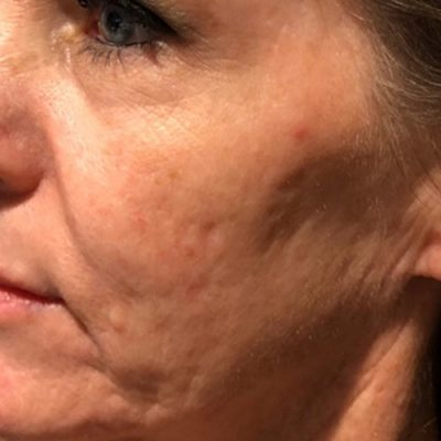 before microneedling female patient cheek