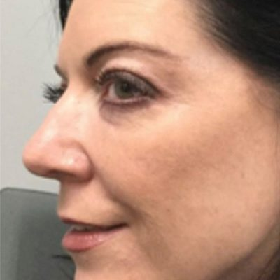 after Morpheus8 treatment left profile