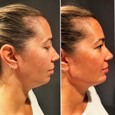 Chin and Jawline Filler2-min